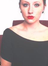 Freckles18 1